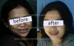 Grosir Kosmetik Before After Cream Syahrini Baby Pink ORIGINAL